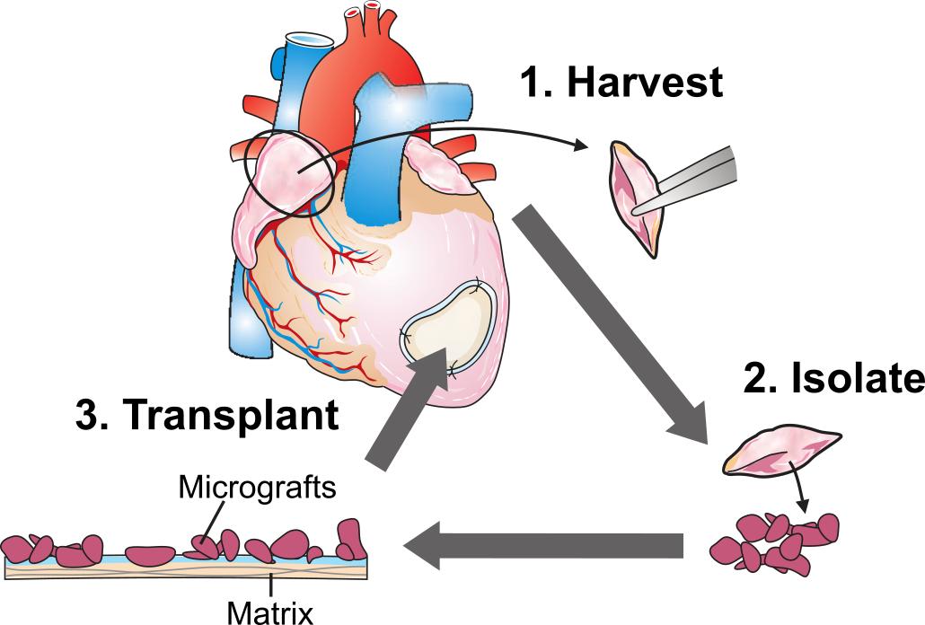 Cardiac Micrograft Therapy graphic