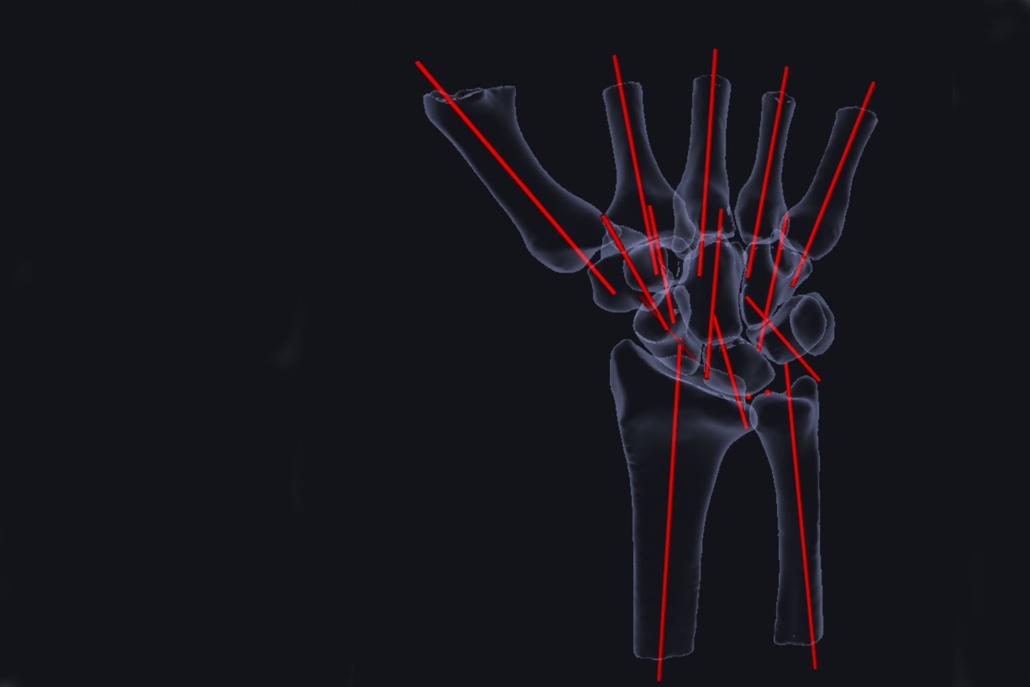 Wrist_3D imaging